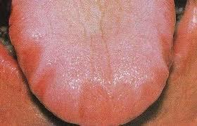 Tongue Problem